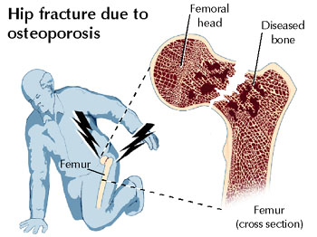 Hip fracture due to osteoporosis